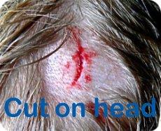 head cut bleeding