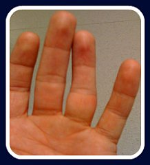 first aid for dislocated finger