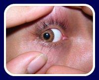 eye injury