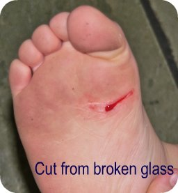 cut on foot