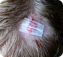 cut head steri strips