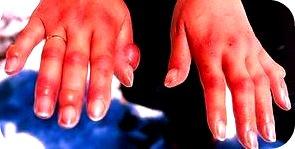 frostbite hands